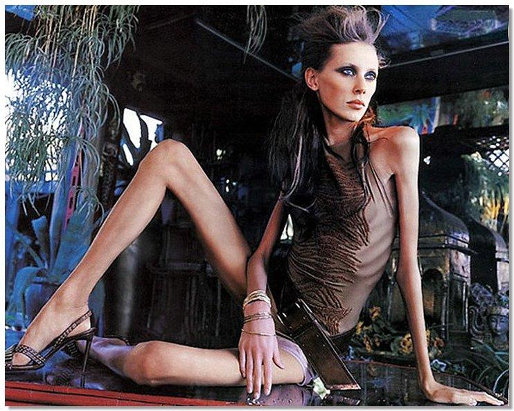 Anorexia02 8 знаменитостей, умерших от анорексии