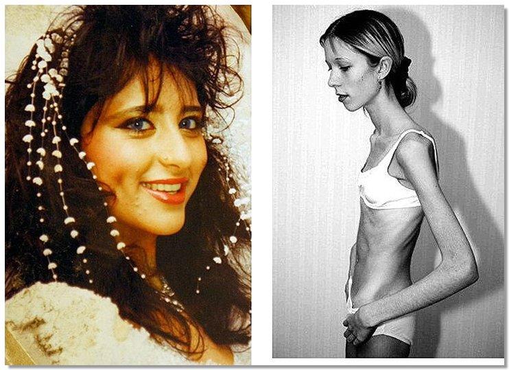 Anorexia03 8 знаменитостей, умерших от анорексии