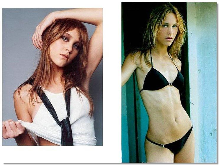 Anorexia05 8 знаменитостей, умерших от анорексии